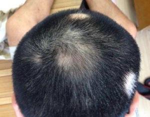 小孩斑秃是什么原因造成的 小孩斑秃是什么原因引起的