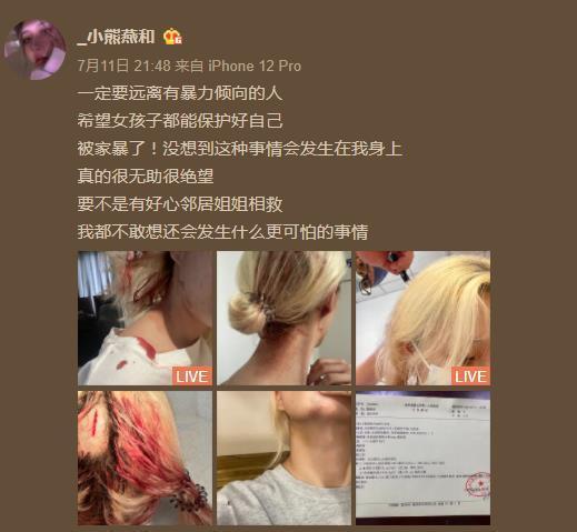 女网红被运动员男友家暴 在电梯打出满头血