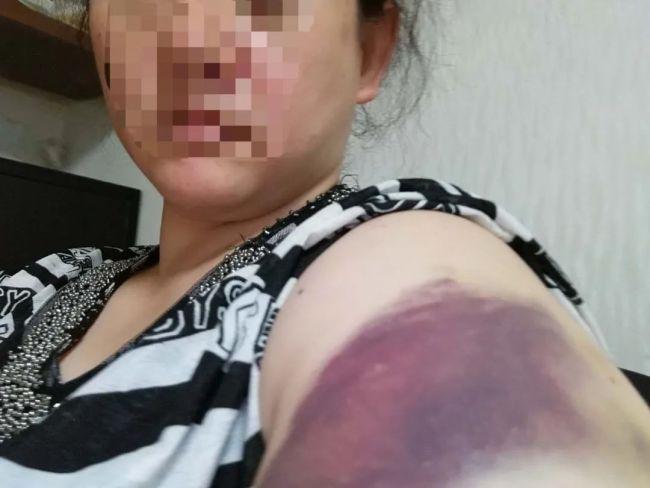2018年,因为阻止小辉玩游戏,江欣左臂被小辉打伤,深紫色淤青明显。受访者供图